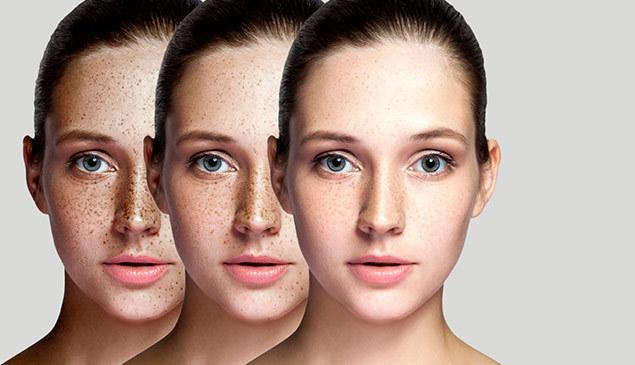 Cosmelan dermamelan vitality skin clinic