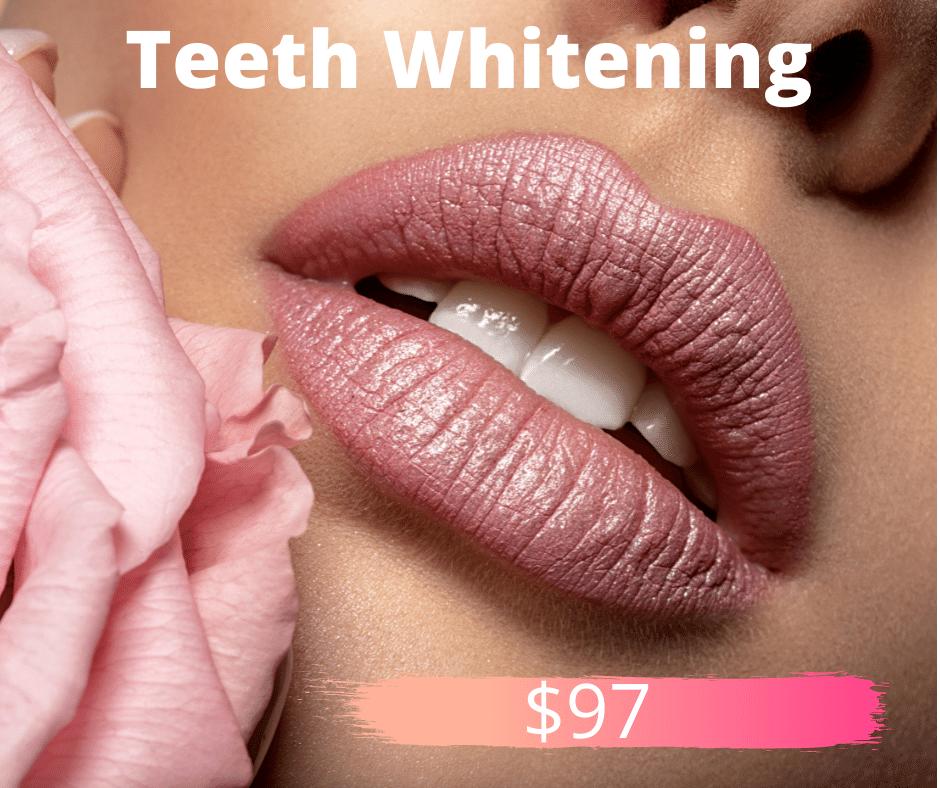 Teeth whitening low res